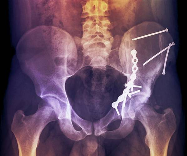 X Wing Photograph - 'pinned Hip Fractures by Zephyr/science Photo Library