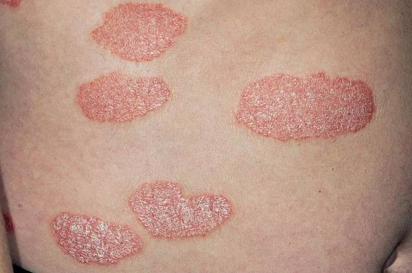 Wall Art - Photograph - Plaque Psoriasis On The Back by Dr P. Marazzi/science Photo Library