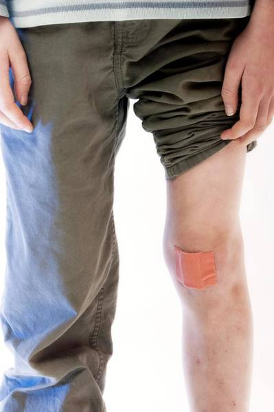 Injury Wall Art - Photograph - Plaster On A Boy's Knee by Claire Deprez/reporters/science Photo Library
