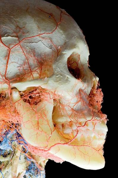 Wall Art - Photograph - Plastinated Skull Exhibit by Thierry Berrod, Mona Lisa Production/ Science Photo Library