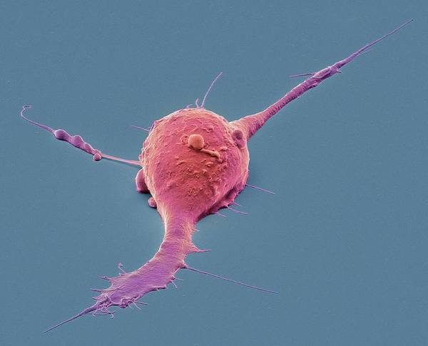 Controversial Photograph - Pluripotent Stem Cell by Steve Gschmeissner
