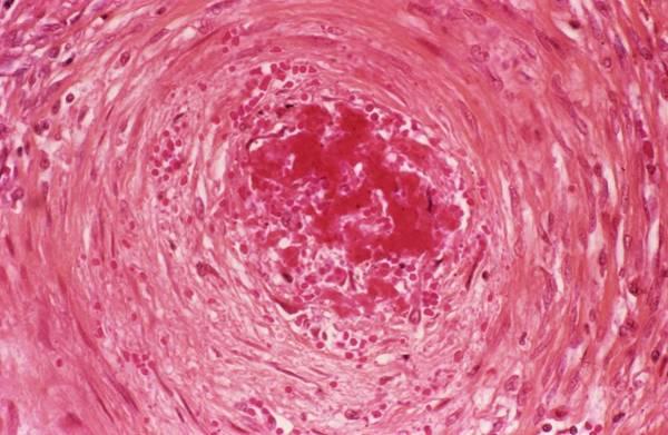 Microscope Wall Art - Photograph - Polyarteritis Nodosa In A Kidney by Pr. R. Abelanet - Cnri