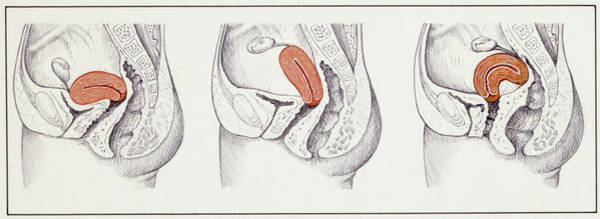 Wall Art - Photograph - Positions Of The Uterus by De Agostini Picture Library, Universal Images Group/science Photo Library