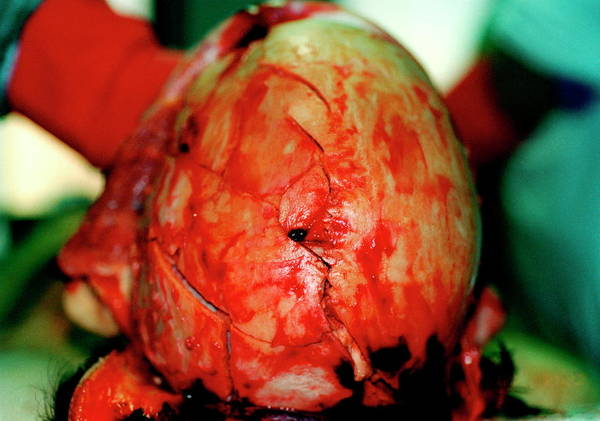 Morgue Photograph - Post-mortem On Head Wound by Mauro Fermariello/science Photo Library