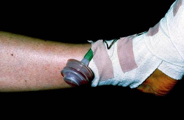 Bandage Photograph - Post-operative Drainage & Bandages On Woman's Foot by Dr P. Marazzi/science Photo Library