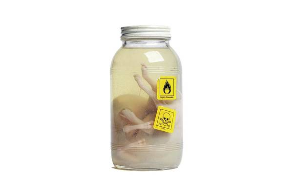 Flammable Photograph - Preserved Calf Foetus by Gregory Davies