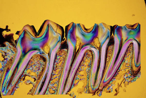 Bone Structure Wall Art - Photograph - Primate Molar Teeth by Innerspace Imaging/science Photo Library
