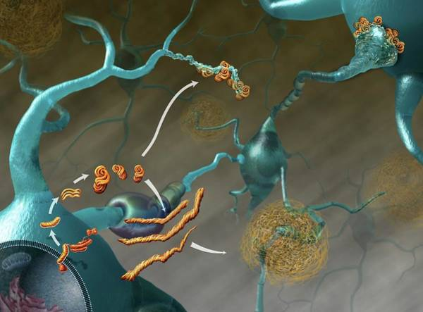 Neuron Wall Art - Photograph - Prions In Brain Disease by Nicolle R. Fuller