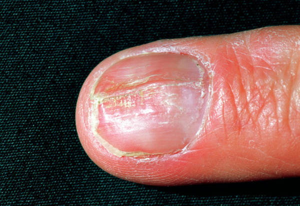 Fingernail Wall Art - Photograph - Psoriasis Affecting The Fingernail by Dr P. Marazzi/science Photo Library