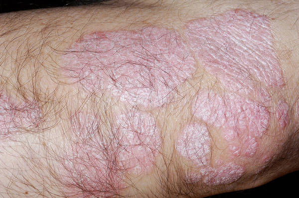 Wall Art - Photograph - Psoriasis On A Man's Elbow by Dr P. Marazzi/science Photo Library