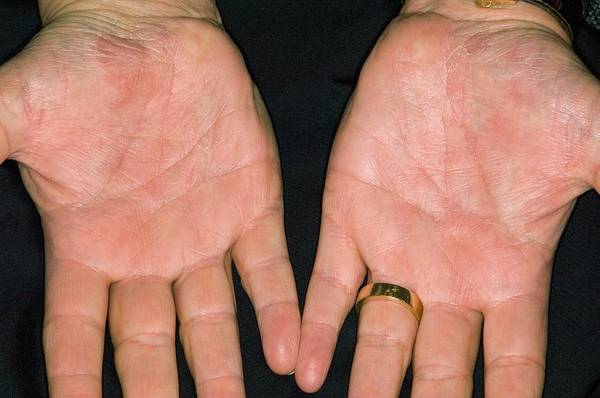Scaling Photograph - Psoriasis On The Palm Of The Hands by Dr P. Marazzi/science Photo Library