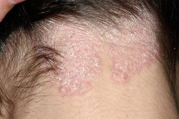 Chronic Wall Art - Photograph - Psoriasis On The Scalp by Dr P. Marazzi/science Photo Library