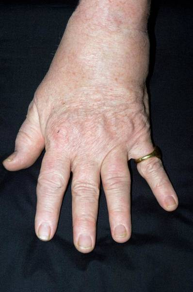 Chronic Pain Wall Art - Photograph - Psoriatic Arthritis by Dr P. Marazzi/science Photo Library