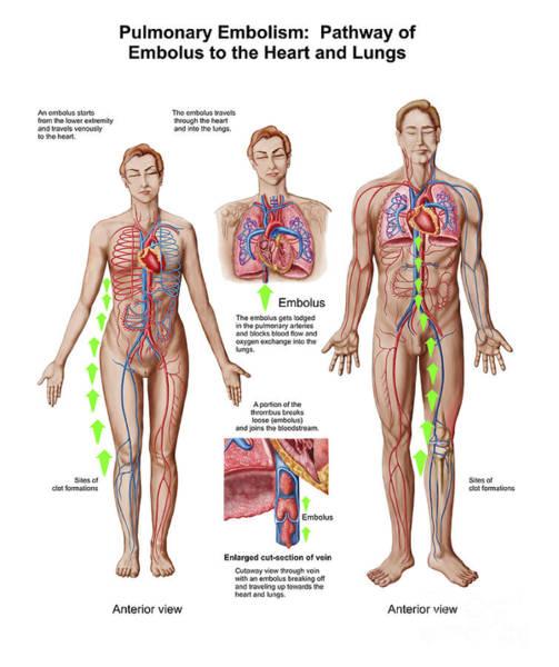 Digital Art - Pulmonary Embolism, Pathway Of Embolus by Stocktrek Images