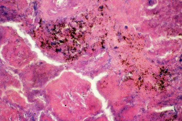 Wall Art - Photograph - Pulmonary Tuberculosis by Clouds Hill Imaging Ltd/science Photo Library