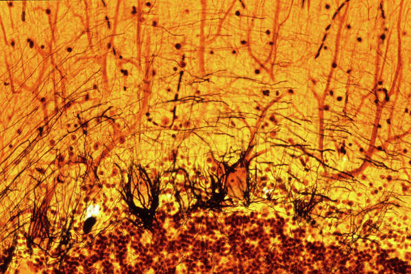 Nerve Cell Photograph - Purkinje Nerve Cells by Innerspace Imaging/science Photo Library