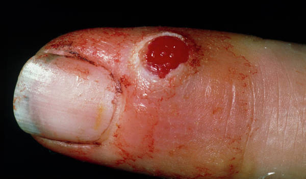 Wall Art - Photograph - Pyogenic Granuloma On Patient's Finger by Dr P. Marazzi/science Photo Library