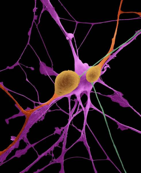 Wall Art - Photograph - Pyramidal Neurons From Cns by Dennis Kunkel Microscopy/science Photo Library