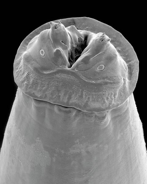 Raccoon Photograph - Raccoon Intestinal Roundworm by Dennis Kunkel Microscopy/science Photo Library