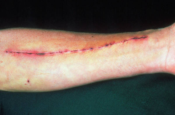 Wall Art - Photograph - Radial Artery Excision Scar On Man's Arm by Dr P. Marazzi/science Photo Library