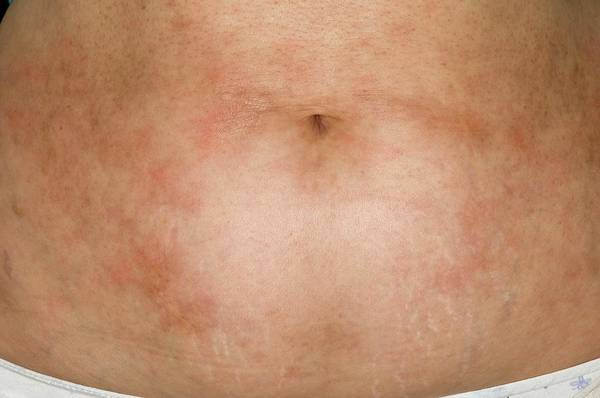 Wall Art - Photograph - Rash On Abdomen After Cancer Treatment by Dr P. Marazzi/science Photo Library