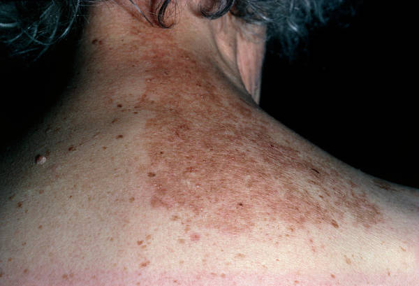 Shingles Photograph - Rash On Back Following Shingles (herpes Zoster) by Dr P. Marazzi/science Photo Library