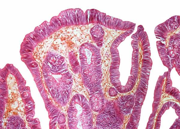 Wall Art - Photograph - Rectal Papilloma by Steve Gschmeissner/science Photo Library