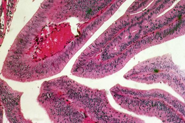 Light Microscope Wall Art - Photograph - Rectal Tumour by Cnri