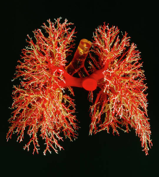 Artery Wall Art - Photograph - Resin Cast Of Pulmonary Arteries And Bronchi by Martin Dohrnroyal College Of Surgeons .