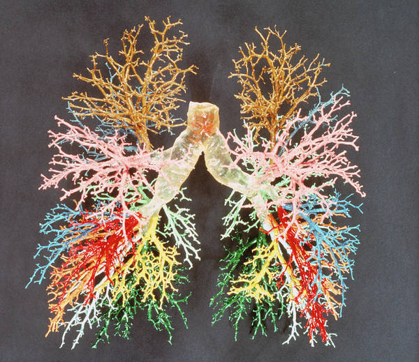 Bronchus Photograph - Resin Cast Of The Airways Of The Human Lungs by Science Photo Library