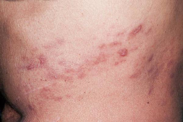 Shingles Photograph - Resolving Shingles Rash by Dr P. Marazzi/science Photo Library