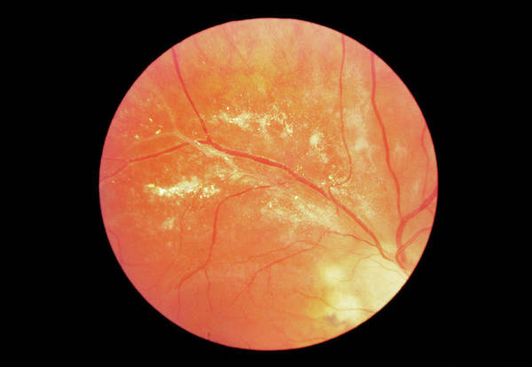 Wall Art - Photograph - Retinitis In Aids by Paul Parker/science Photo Library