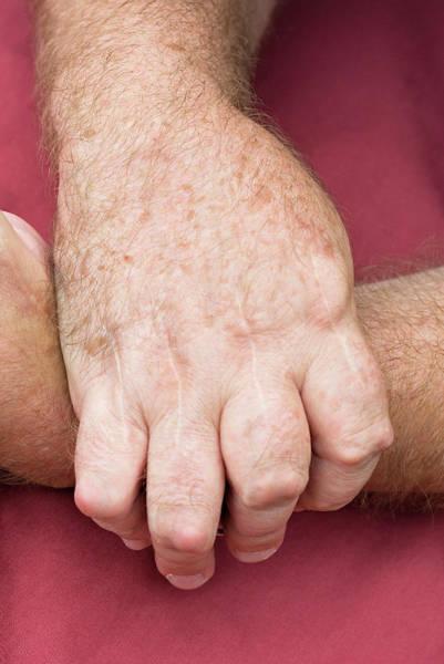 Chronic Pain Wall Art - Photograph - Rheumatoid Arthritis by Matt Meadows/science Photo Library