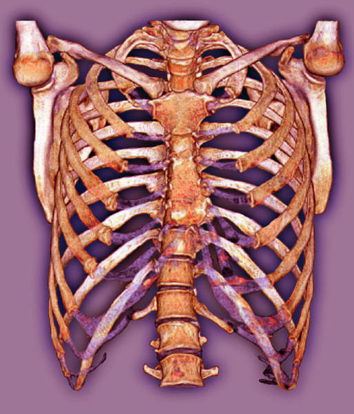 False Ribs Wall Art - Photograph - Rib Cage by Zephyr/science Photo Library