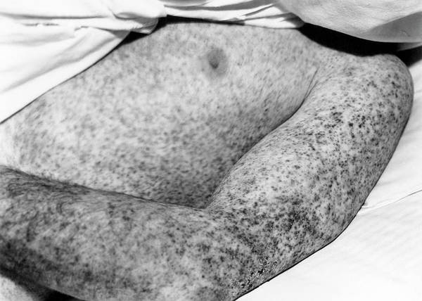 Fever Photograph - Rocky Mountain Spotted Fever Patient by Rocky Mountain Laboratories, National Institutes Of Health/science Photo Library