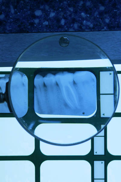 Light Box Photograph - Root Canal Dental X-ray by Chris Knapton/science Photo Library