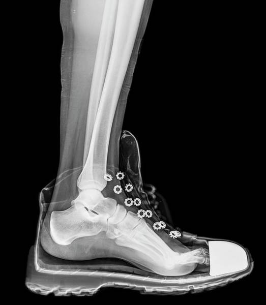 Body Parts Photograph - Running Shoe X-ray by Photostock-israel