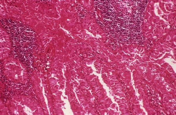 Microscope Wall Art - Photograph - Salivary Gland Tumour by Cnri/science Photo Library