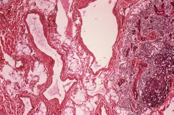 Neoplasm Photograph - Salivary Lymphangioma by Cnri