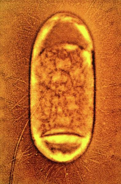 Transmission Electron Microscope Wall Art - Photograph - Salmonella Typhimurium Bacterium by Peter Cooke, Lenier Tucker/us Department Of Agriculture