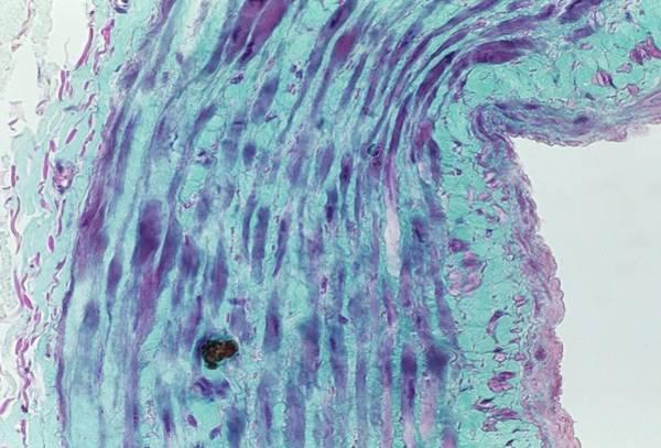 Microscopy Photograph - Saphenous Vein by Alain Pol - Cnri