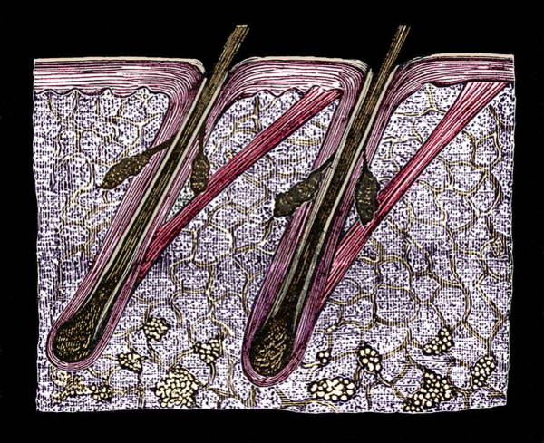 Wall Art - Photograph - Scalp Hair Follicles by Sheila Terry/science Photo Library