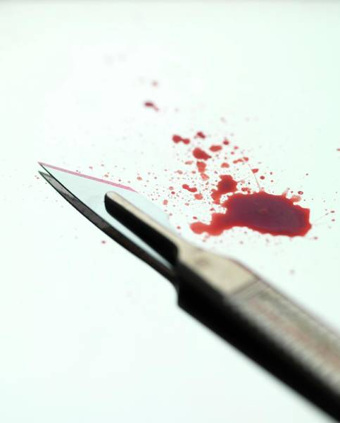 Medical Image Photograph - Scalpel by Tek Image/science Photo Library