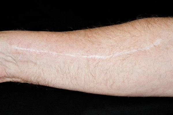 Surgery Photograph - Scar From Coronary Bypass Surgery by Dr P. Marazzi/science Photo Library