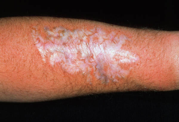 Wall Art - Photograph - Scar On Forearm After Tattoo Removal by Dr P. Marazzi/science Photo Library
