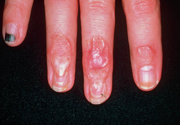 Wall Art - Photograph - Scars On Fingers Due To Crushing Injury by Medical Photo Nhs Lothian/science Photo Library