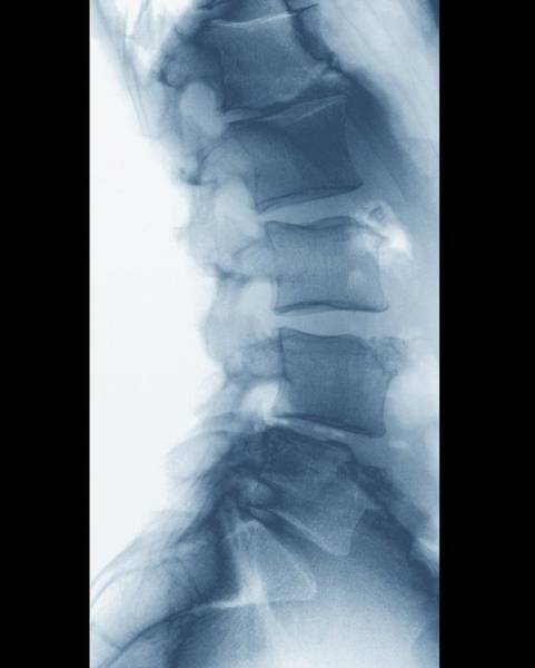 Back Bone Wall Art - Photograph - Scheuermann's Disease by Zephyr/science Photo Library