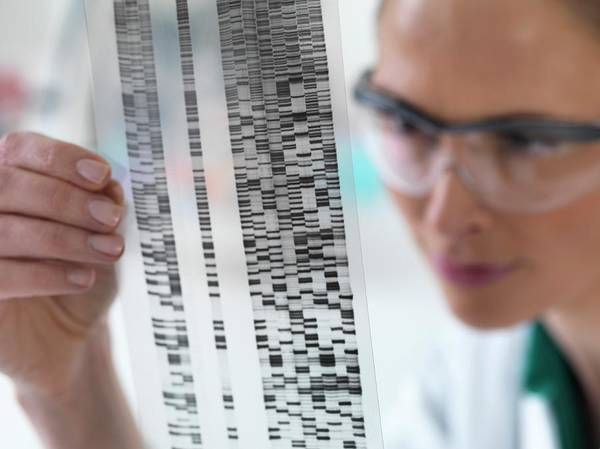 Autoradiogram Photograph - Scientist With Dna Results by Tek Image
