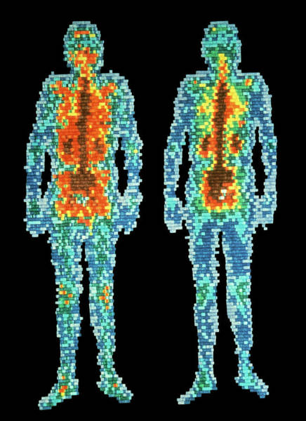 Isotope Photograph - Scintigrams Of Healthy Man by Elscint/science Photo Library.