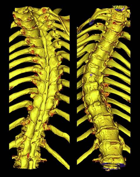 False Ribs Wall Art - Photograph - Scoliosis Of The Thoracic Spine by K H Fung/science Photo Library